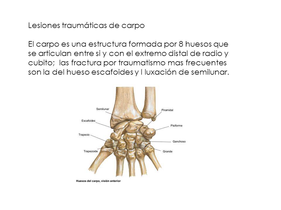 Lesiones traumáticas de carpo El carpo es una estructura formada por 8 huesos que se articulan entre si y con el extremo distal de radio y cubito; las