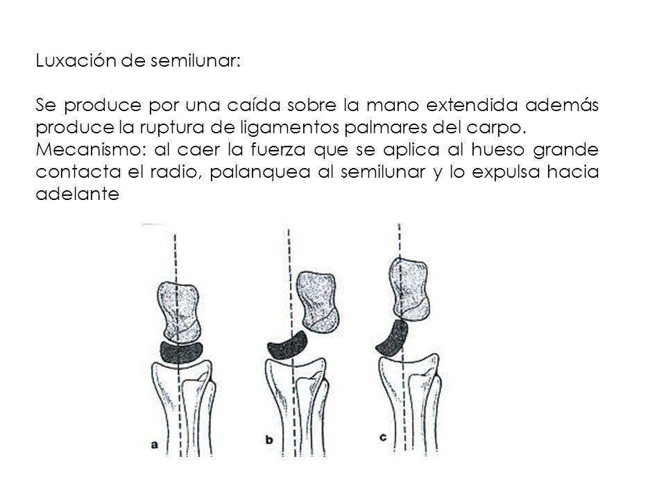 Luxación de semilunar: Se produce por una caída sobre la mano extendida además produce la ruptura de ligamentos palmares del carpo. Mecanismo: al caer