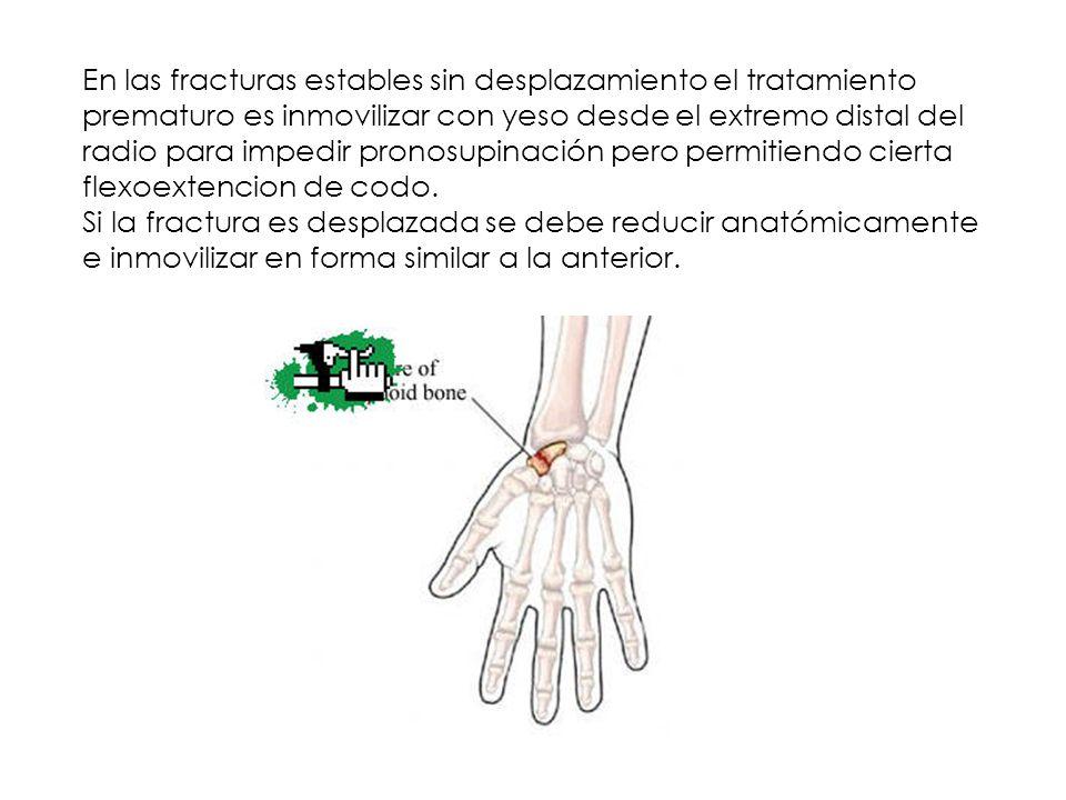 En las fracturas estables sin desplazamiento el tratamiento prematuro es inmovilizar con yeso desde el extremo distal del radio para impedir pronosupi