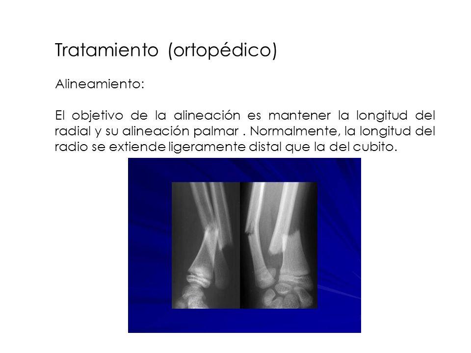 Tratamiento (ortopédico) Alineamiento: El objetivo de la alineación es mantener la longitud del radial y su alineación palmar. Normalmente, la longitu