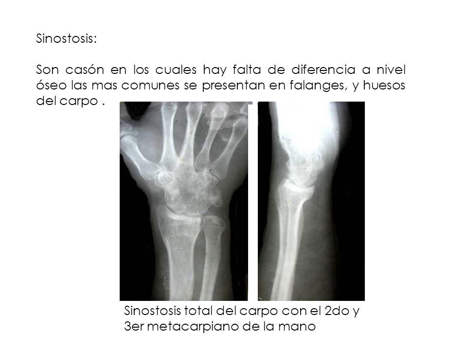 Sinostosis: Son casón en los cuales hay falta de diferencia a nivel óseo las mas comunes se presentan en falanges, y huesos del carpo. Sinostosis tota