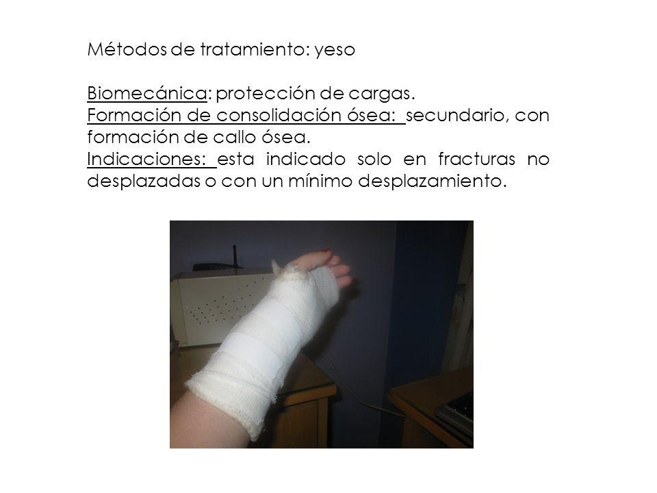 Métodos de tratamiento: yeso Biomecánica: protección de cargas. Formación de consolidación ósea: secundario, con formación de callo ósea. Indicaciones