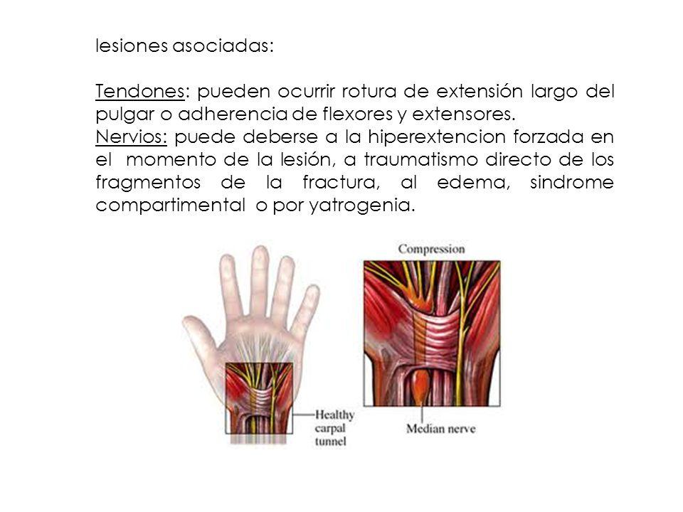 lesiones asociadas: Tendones: pueden ocurrir rotura de extensión largo del pulgar o adherencia de flexores y extensores. Nervios: puede deberse a la h