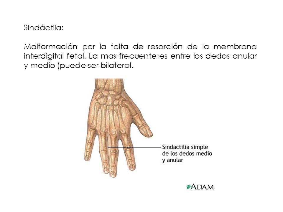 Sindáctila: Malformación por la falta de resorción de la membrana interdigital fetal. La mas frecuente es entre los dedos anular y medio (puede ser bi