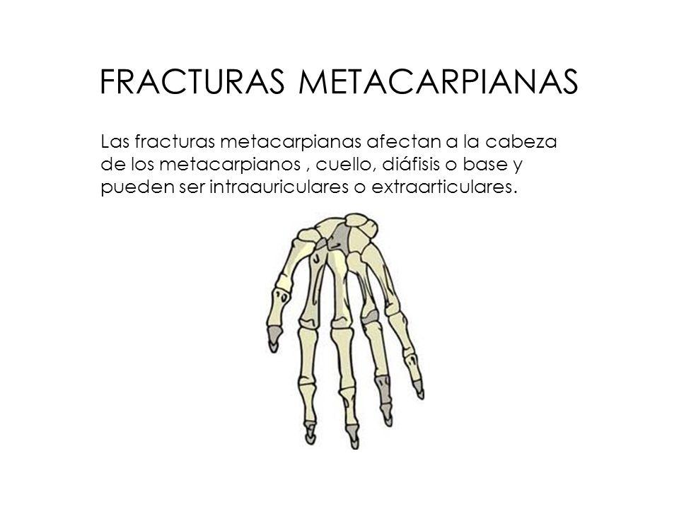 FRACTURAS METACARPIANAS Las fracturas metacarpianas afectan a la cabeza de los metacarpianos, cuello, diáfisis o base y pueden ser intraauriculares o