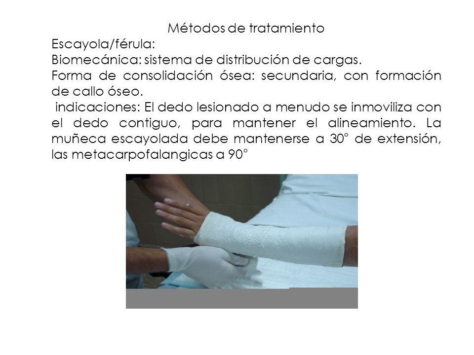 Métodos de tratamiento Escayola/férula: Biomecánica: sistema de distribución de cargas. Forma de consolidación ósea: secundaria, con formación de call