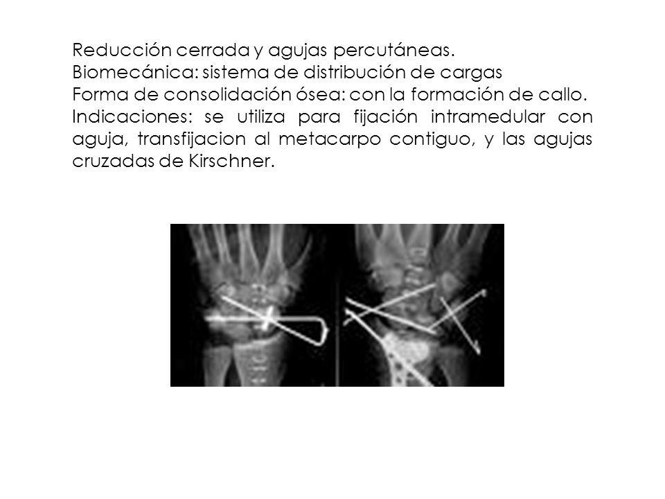 Reducción cerrada y agujas percutáneas. Biomecánica: sistema de distribución de cargas Forma de consolidación ósea: con la formación de callo. Indicac