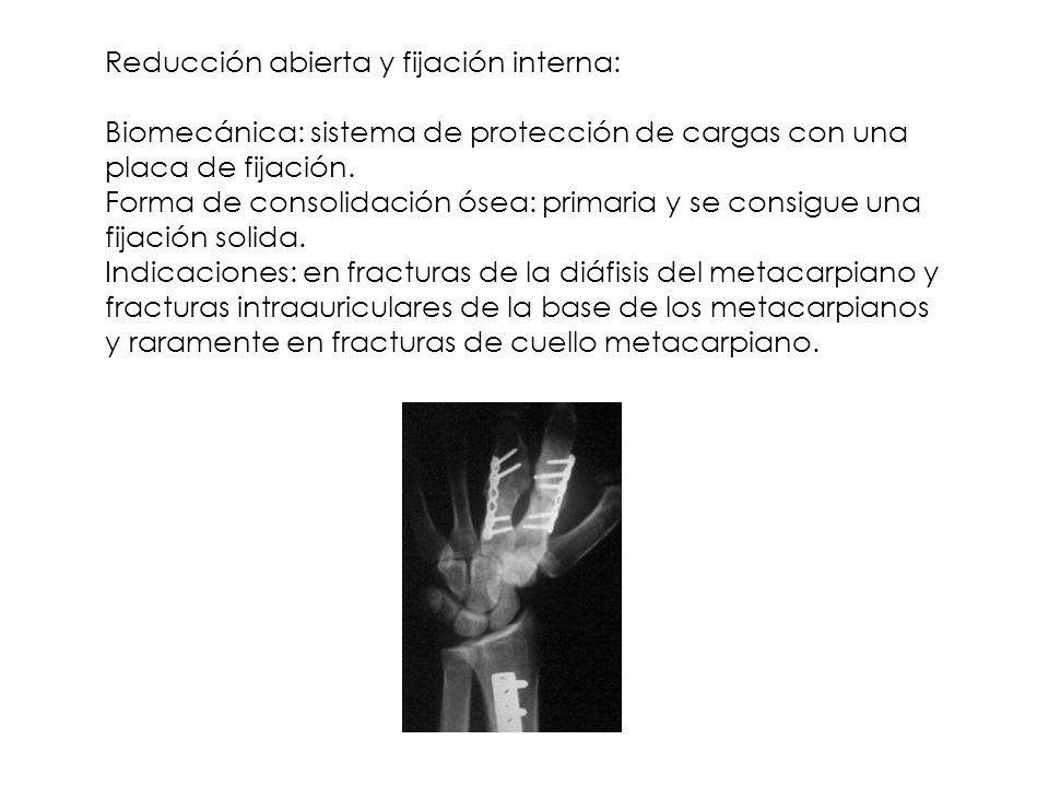 Reducción abierta y fijación interna: Biomecánica: sistema de protección de cargas con una placa de fijación. Forma de consolidación ósea: primaria y