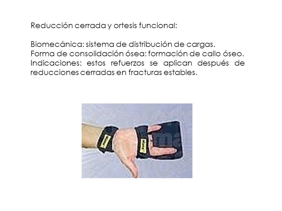 Reducción cerrada y ortesis funcional: Biomecánica: sistema de distribución de cargas. Forma de consolidación ósea: formación de callo óseo. Indicacio