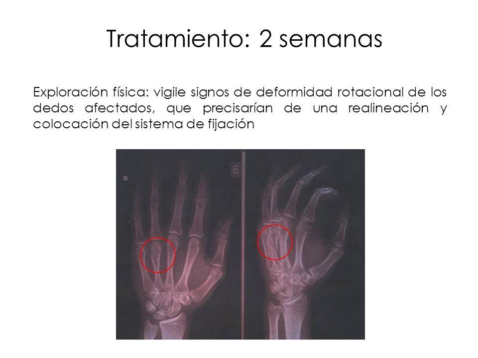 Tratamiento: 2 semanas Exploración física: vigile signos de deformidad rotacional de los dedos afectados, que precisarían de una realineación y coloca