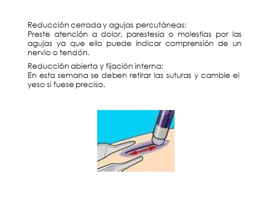 Reducción cerrada y agujas percutáneas: Preste atención a dolor, parestesia o molestias por las agujas ya que ello puede indicar comprensión de un ner