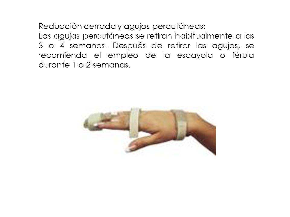 Reducción cerrada y agujas percutáneas: Las agujas percutáneas se retiran habitualmente a las 3 o 4 semanas. Después de retirar las agujas, se recomie