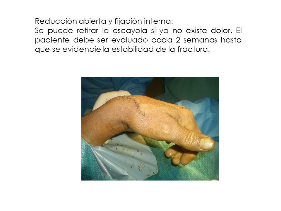 Reducción abierta y fijación interna: Se puede retirar la escayola si ya no existe dolor. El paciente debe ser evaluado cada 2 semanas hasta que se ev
