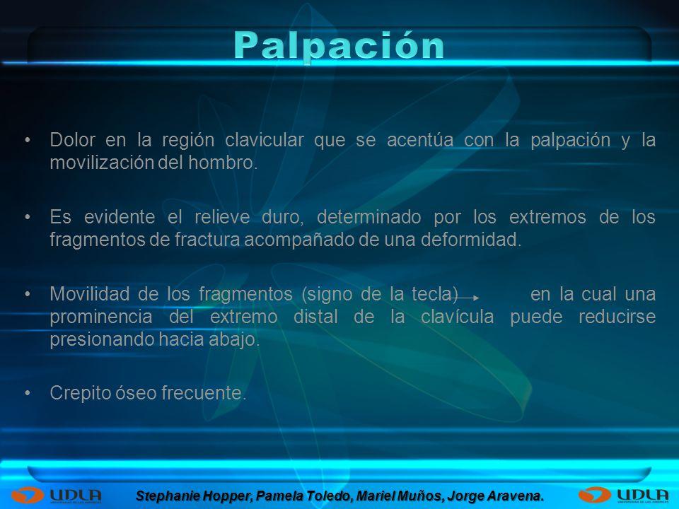 Dolor en la región clavicular que se acentúa con la palpación y la movilización del hombro.