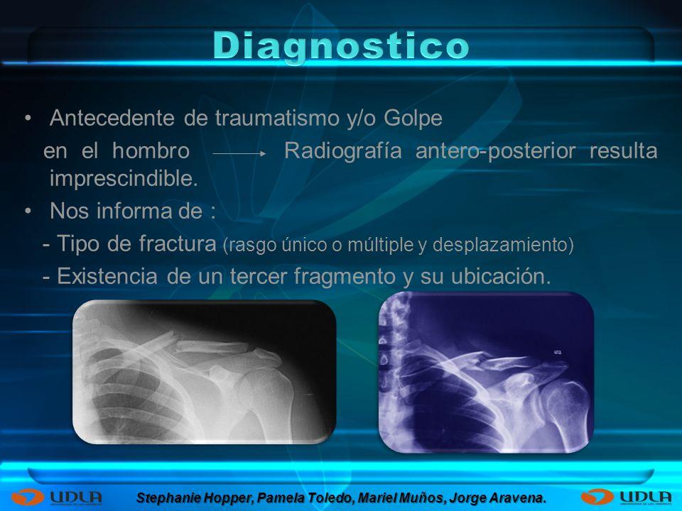 Antecedente de traumatismo y/o Golpe en el hombro Radiografía antero-posterior resulta imprescindible. Nos informa de : - Tipo de fractura (rasgo únic
