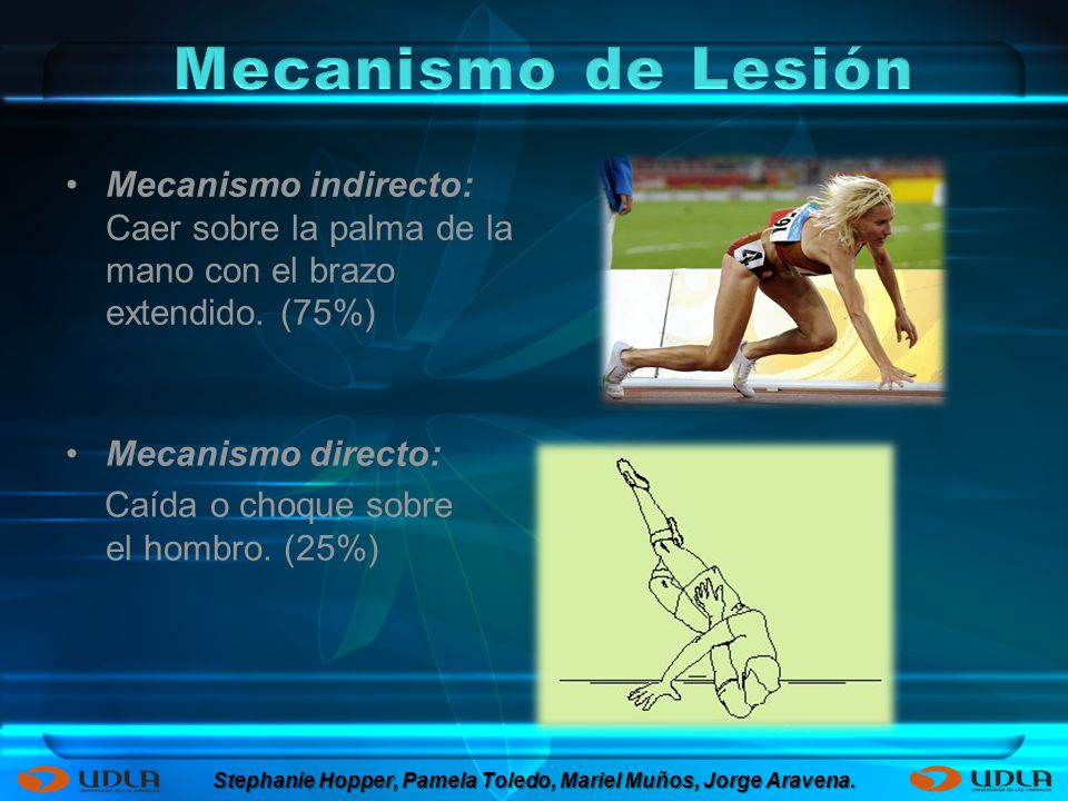 Mecanismo indirecto: Caer sobre la palma de la mano con el brazo extendido. (75%) Mecanismo directo: Caída o choque sobre el hombro. (25%) Stephanie H