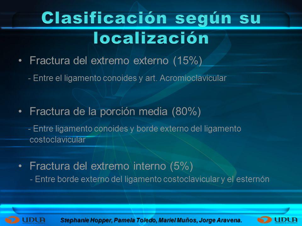 Fractura del extremo externo (15%) - Entre el ligamento conoides y art. Acromioclavicular Fractura de la porción media (80%) - Entre ligamento conoide