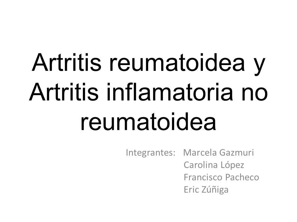 Artritis reumatoidea y Artritis inflamatoria no reumatoidea Integrantes: Marcela Gazmuri Carolina López Francisco Pacheco Eric Zúñiga