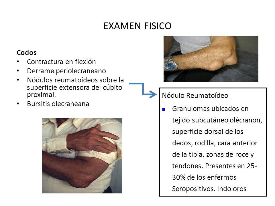 EXAMEN FISICO Codos Contractura en flexión Derrame periolecraneano Nódulos reumatoídeos sobre la superficie extensora del cúbito proximal.