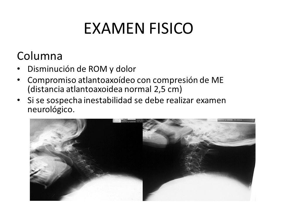 EXAMEN FISICO Columna Disminución de ROM y dolor Compromiso atlantoaxoídeo con compresión de ME (distancia atlantoaxoidea normal 2,5 cm) Si se sospecha inestabilidad se debe realizar examen neurológico.