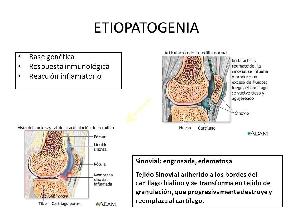 ETIOPATOGENIA Base genética Respuesta inmunológica Reacción inflamatorio Sinovial: engrosada, edematosa, Tejido Sinovial adherido a los bordes del cartílago hialino y se transforma en tejido de granulación, que progresivamente destruye y reemplaza al cartílago.