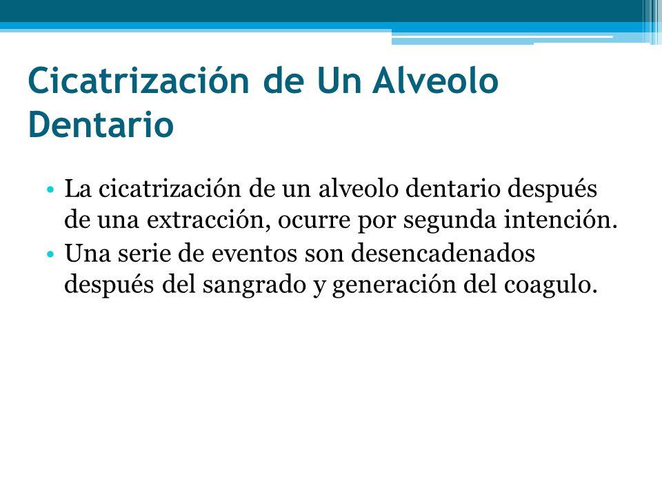 Cicatrización de Un Alveolo Dentario La cicatrización de un alveolo dentario después de una extracción, ocurre por segunda intención. Una serie de eve