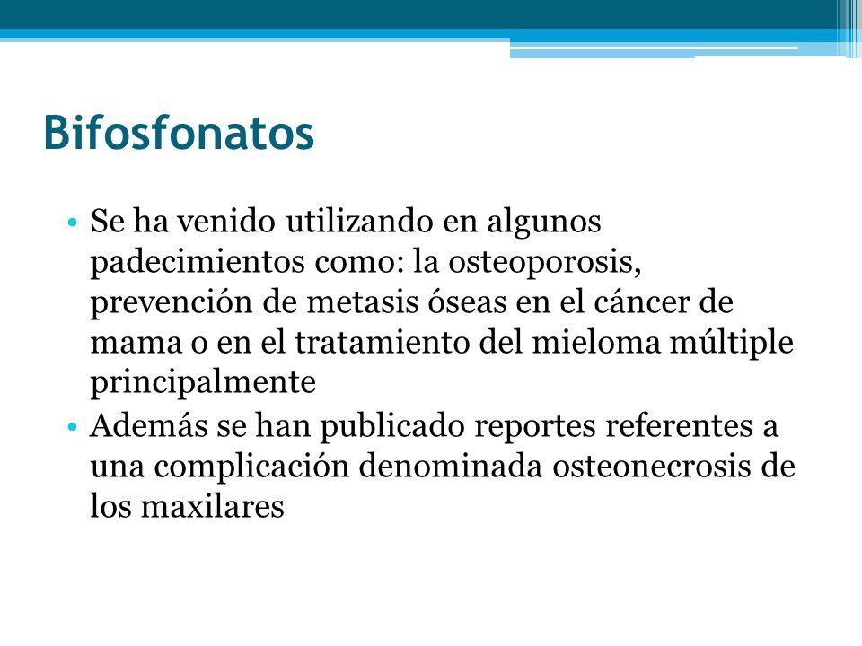 Bifosfonatos Se ha venido utilizando en algunos padecimientos como: la osteoporosis, prevención de metasis óseas en el cáncer de mama o en el tratamie