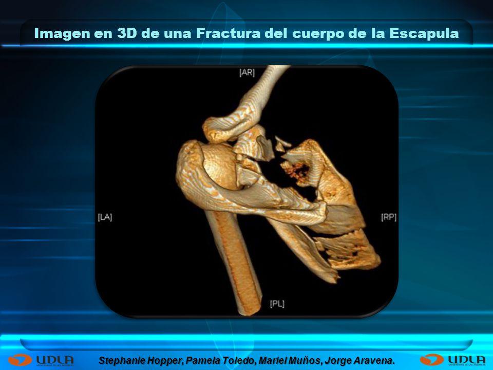 Imagen en 3D de una Fractura del cuerpo de la Escapula Stephanie Hopper, Pamela Toledo, Mariel Muños, Jorge Aravena.