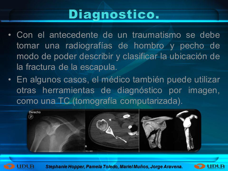 Con el antecedente de un traumatismo se debe tomar una radiografías de hombro y pecho de modo de poder describir y clasificar la ubicación de la fract