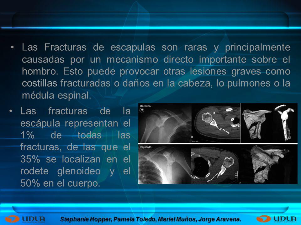 Las Fracturas de escapulas son raras y principalmente causadas por un mecanismo directo importante sobre el hombro. Esto puede provocar otras lesiones