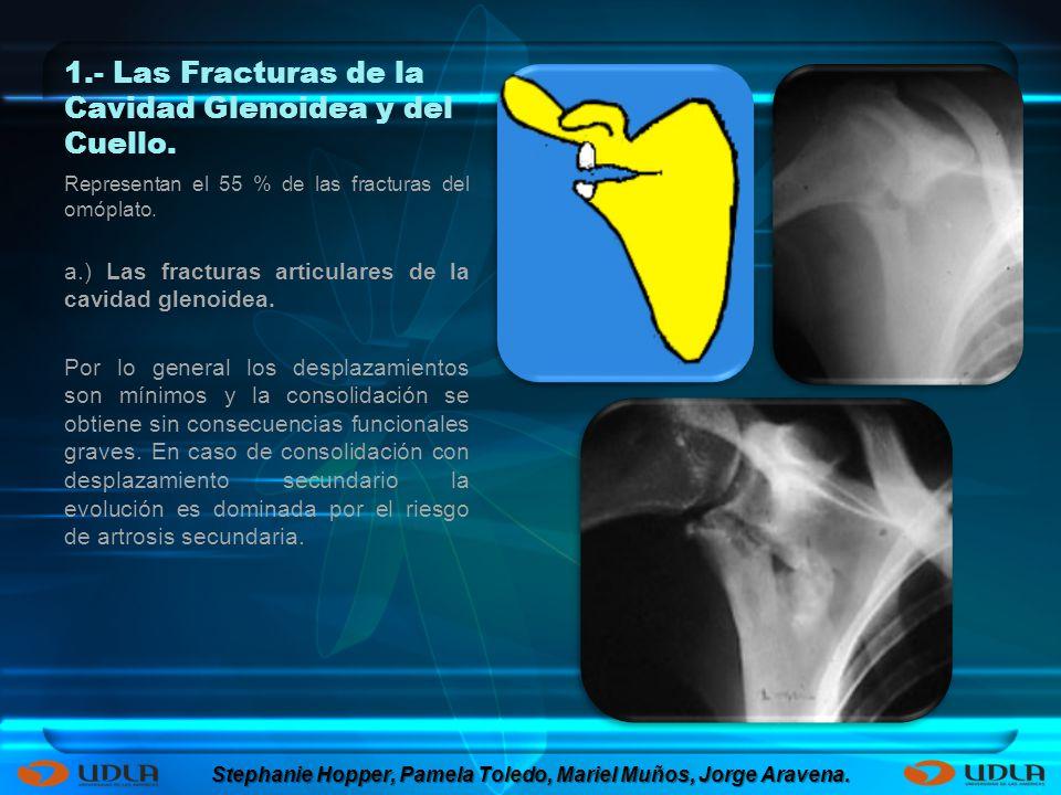 1.- Las Fracturas de la Cavidad Glenoidea y del Cuello. Representan el 55 % de las fracturas del omóplato. a.) Las fracturas articulares de la cavidad
