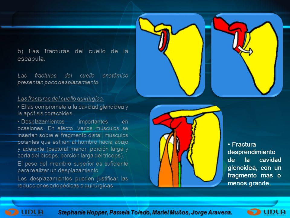 b) Las fracturas del cuello de la escapula. Las fracturas del cuello anatómico presentan poco desplazamiento. Las fracturas del cuello quirúrgico. Ell