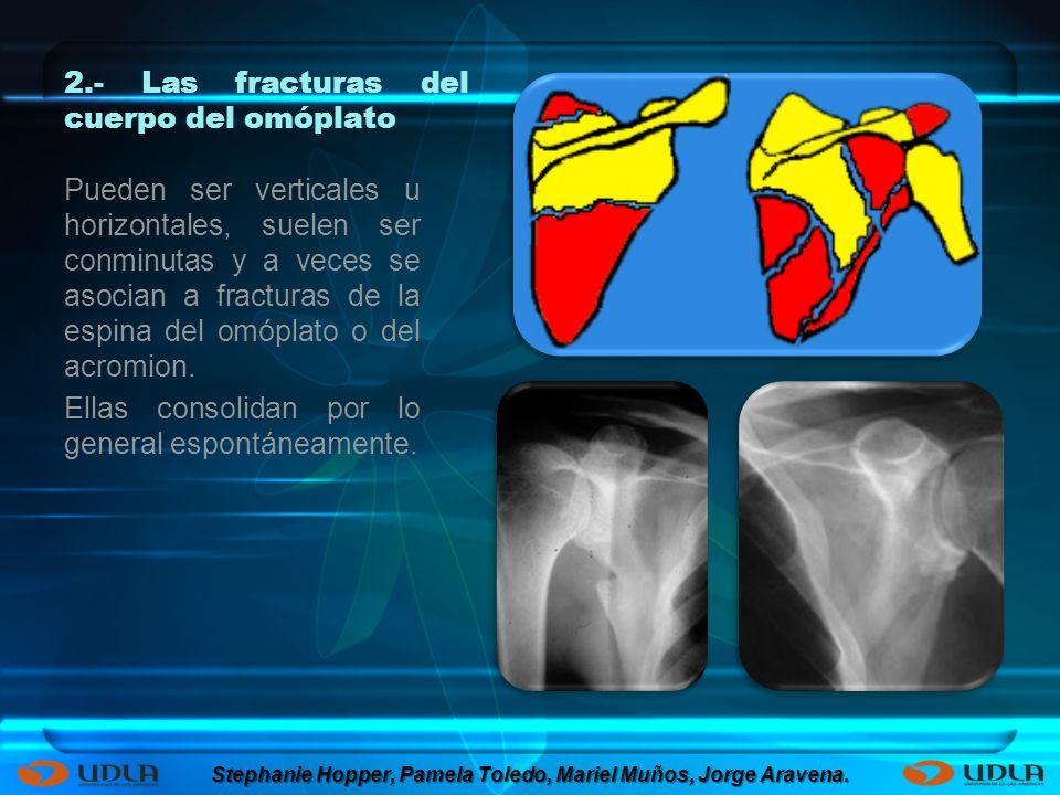 2.- Las fracturas del cuerpo del omóplato Pueden ser verticales u horizontales, suelen ser conminutas y a veces se asocian a fracturas de la espina de