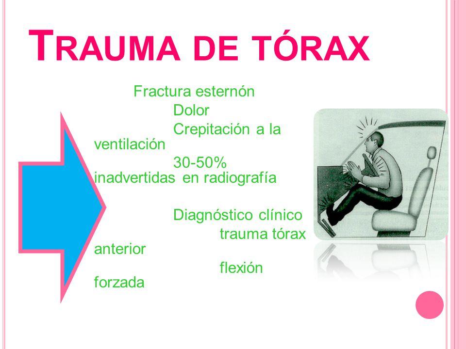 T RAUMA DE TÓRAX Fractura esternón Tratamiento: Alto índice de sospecha de lesiones Manejo por prioridades de vida Analgésicos y/o anestésicos Reducción, fijación Mantener adecuada ventilación y perfusión