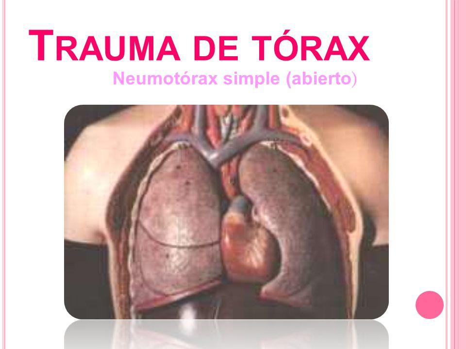 T RAUMA DE TÓRAX Neumotórax simple (abierto )