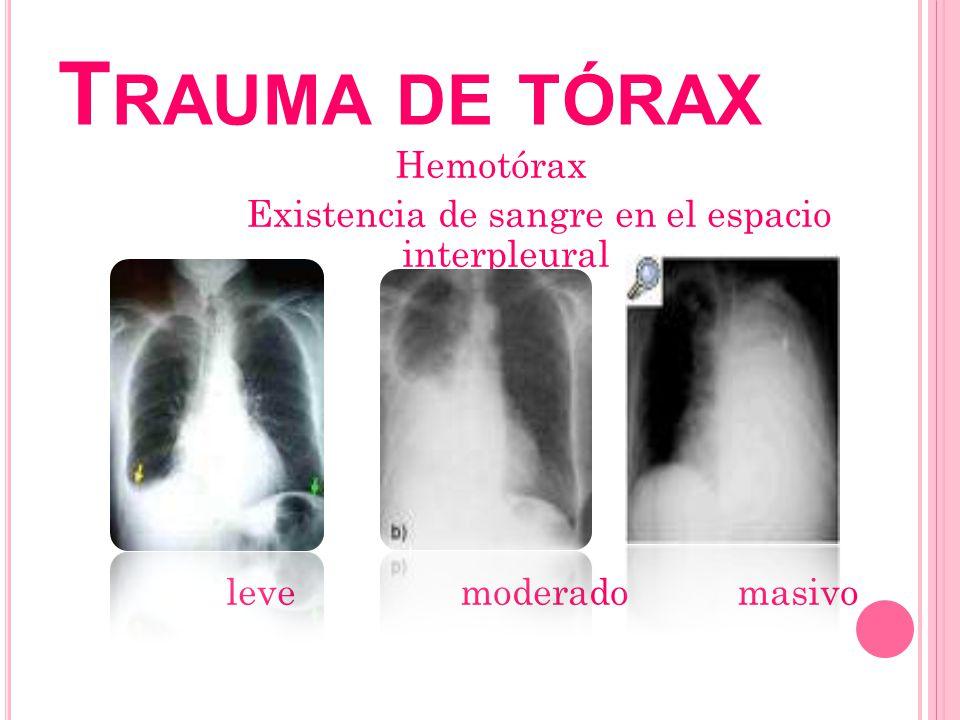 T RAUMA DE TÓRAX Hemotórax Existencia de sangre en el espacio interpleural leve moderado masivo