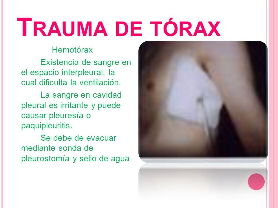 T RAUMA DE TÓRAX Hemotórax Existencia de sangre en el espacio interpleural, la cual dificulta la ventilación. La sangre en cavidad pleural es irritant