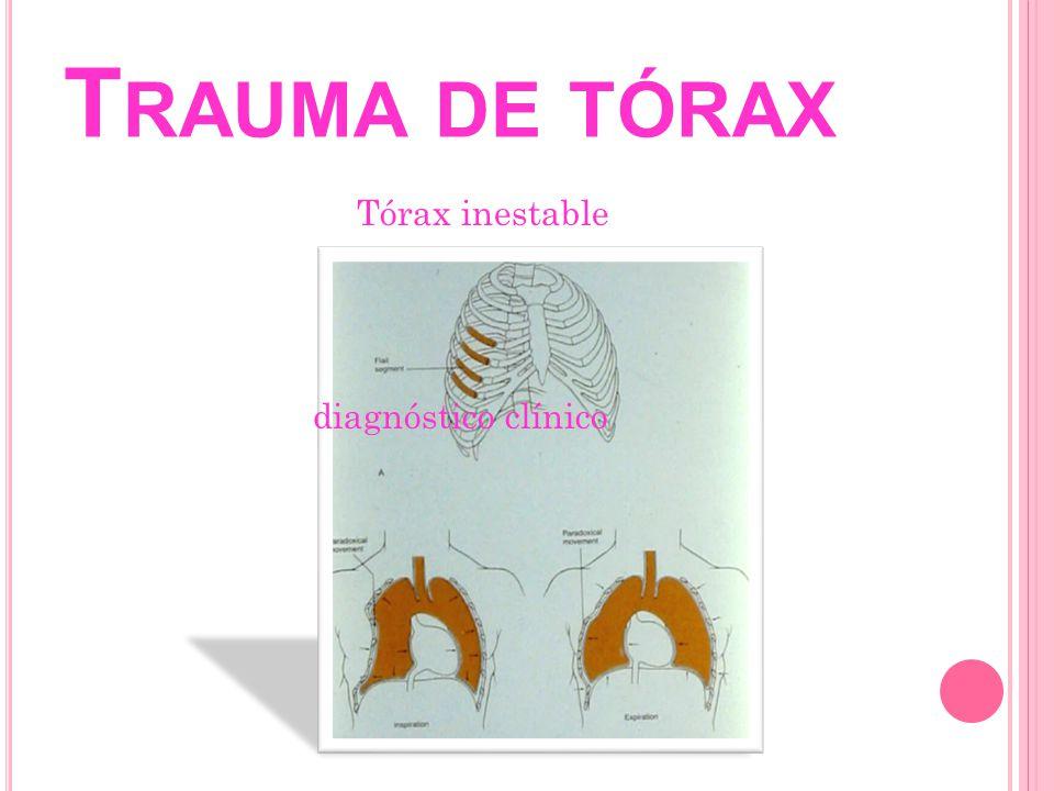 T RAUMA DE TÓRAX Tórax inestable Tratamiento: Alto índice de sospecha de lesiones Manejo por prioridades de vida Conservar adecuada ventilación perfusión Disminuir progresión de lesión pulmonar