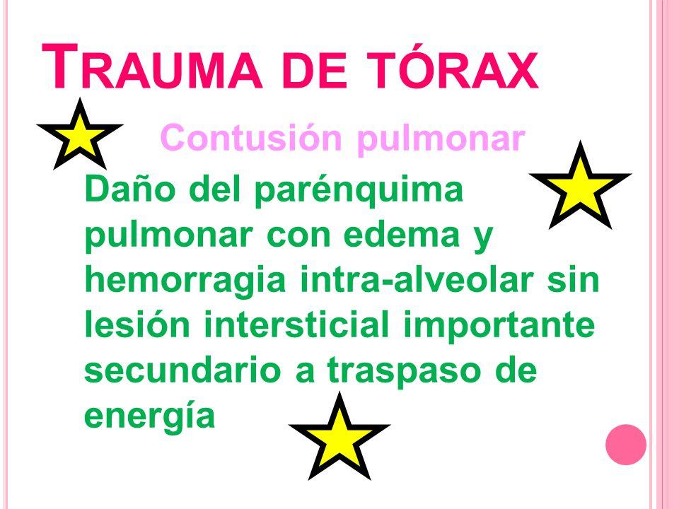 T RAUMA DE TÓRAX Contusión pulmonar Daño del parénquima pulmonar con edema y hemorragia intra-alveolar sin lesión intersticial importante secundario a