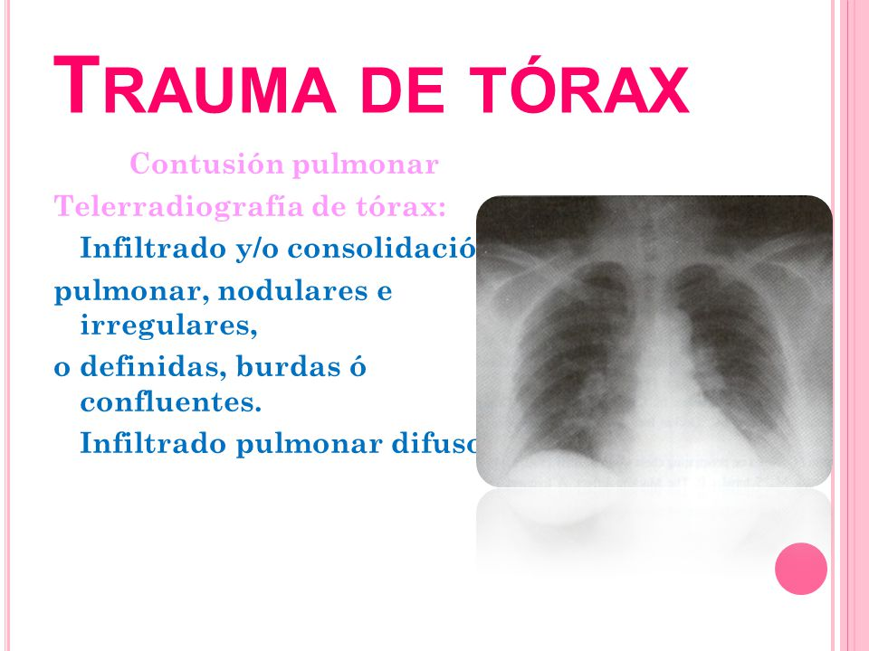 T RAUMA DE TÓRAX Contusión pulmonar Telerradiografía de tórax: Infiltrado y/o consolidación pulmonar, nodulares e irregulares, o definidas, burdas ó c