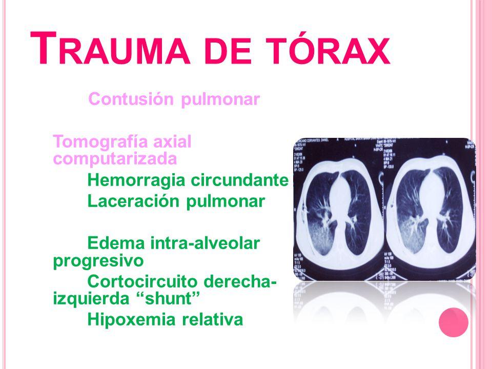 T RAUMA DE TÓRAX Contusión pulmonar Tomografía axial computarizada Hemorragia circundante Laceración pulmonar Edema intra-alveolar progresivo Cortocir