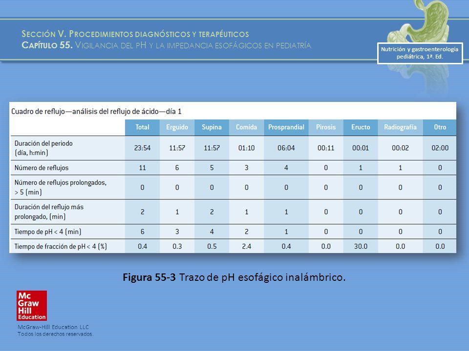 Nutrición y gastroenterología pediátrica, 1ª.Ed. Figura 55-3 Trazo de pH esofágico inalámbrico.