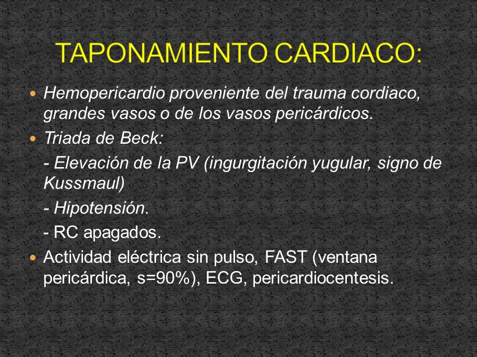 Hemopericardio proveniente del trauma cordiaco, grandes vasos o de los vasos pericárdicos.