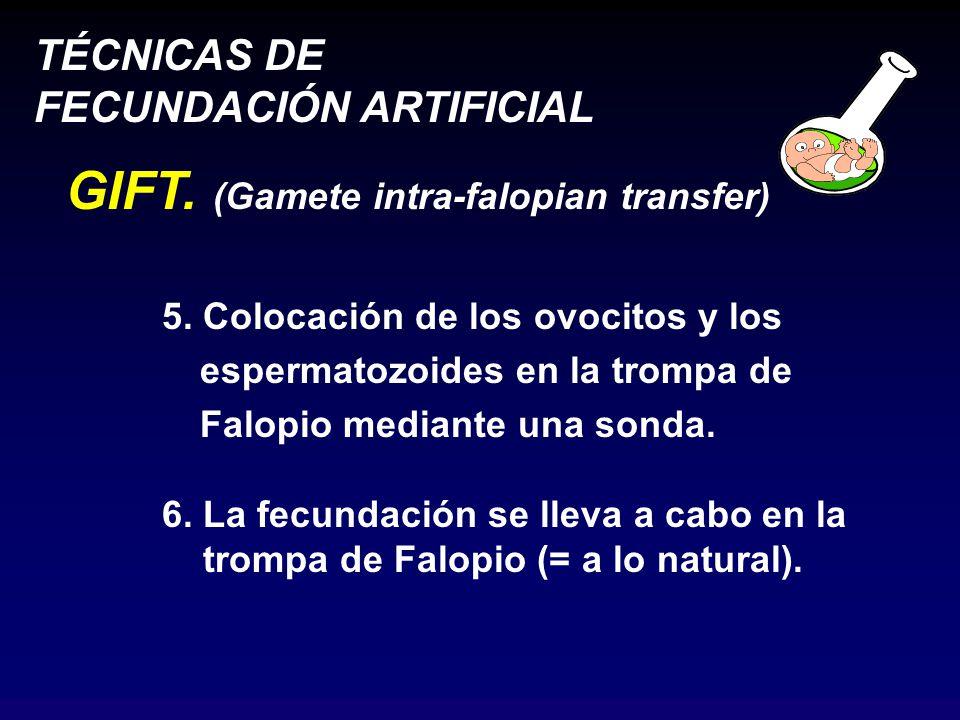 TÉCNICAS DE FECUNDACIÓN ARTIFICIAL GIFT.(Gamete intra-falopian transfer) 5.