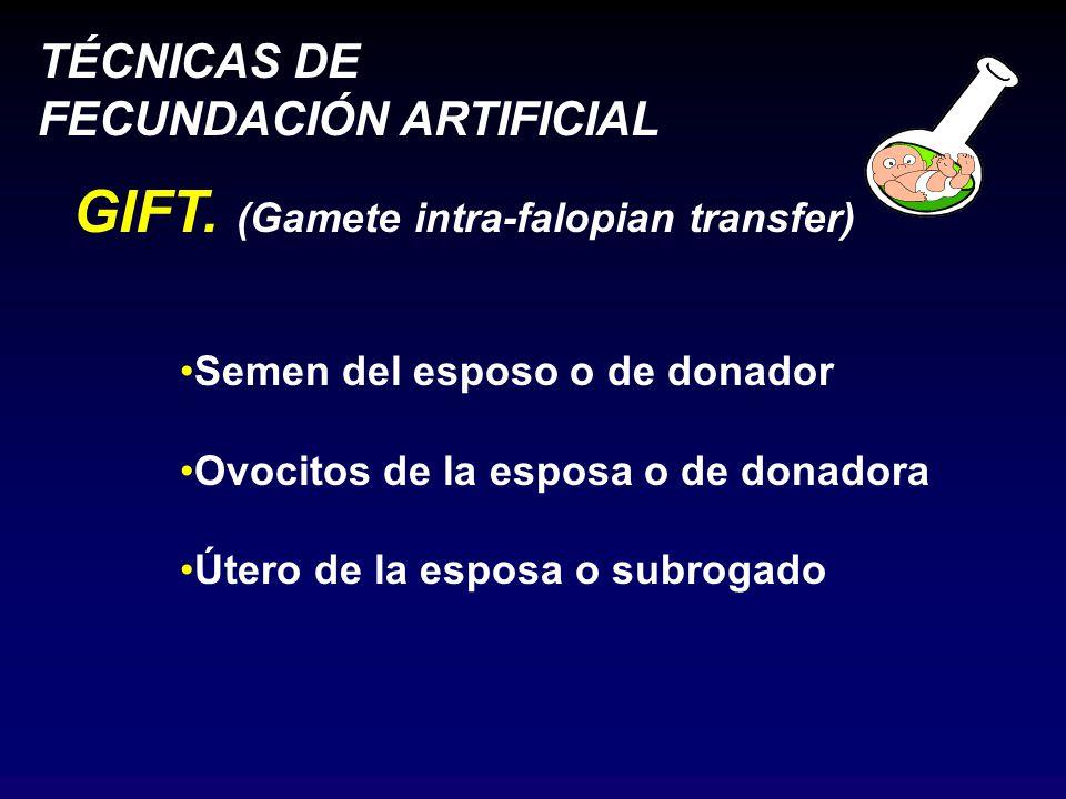 TÉCNICAS DE FECUNDACIÓN ARTIFICIAL GIFT.