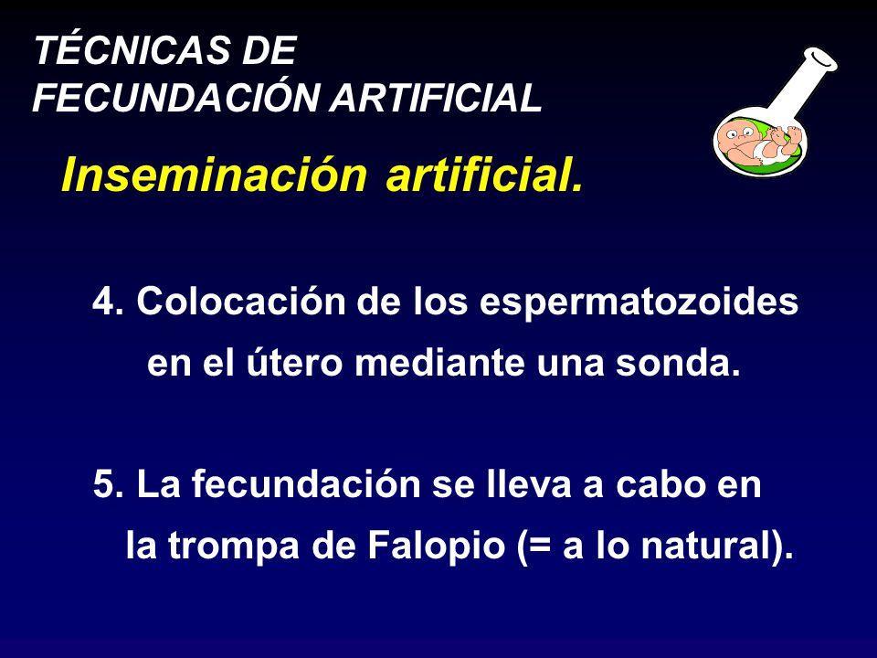 TÉCNICAS DE FECUNDACIÓN ARTIFICIAL Inseminación artificial.
