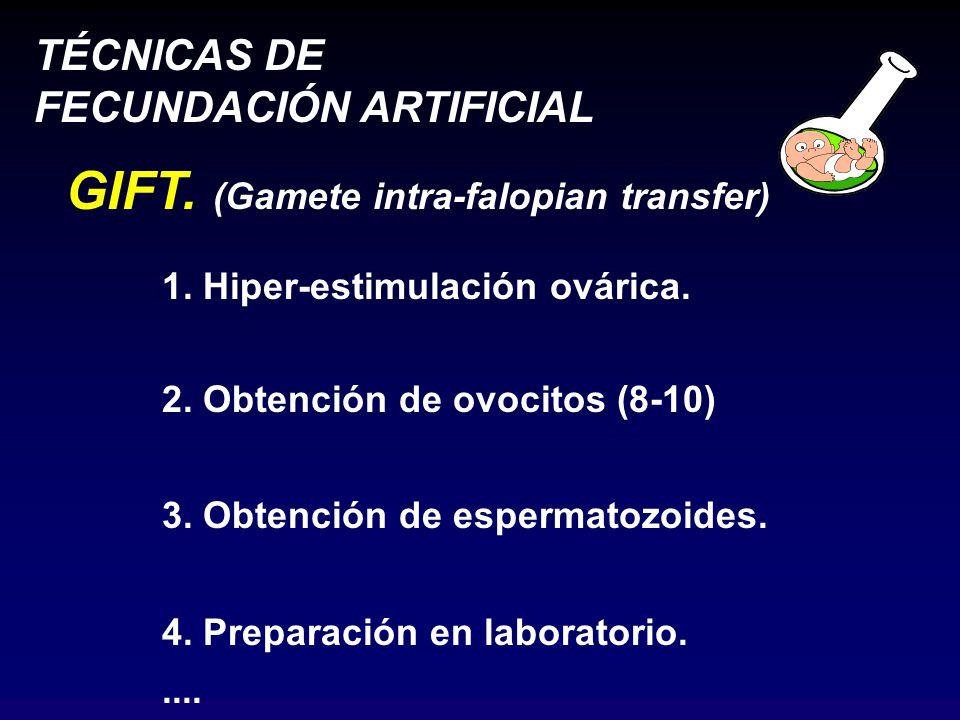 TÉCNICAS DE FECUNDACIÓN ARTIFICIAL GIFT.(Gamete intra-falopian transfer) 1.