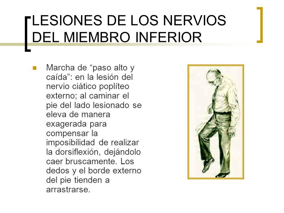 LESIONES DE LOS NERVIOS DEL MIEMBRO INFERIOR Marcha de paso alto y caída: en la lesión del nervio ciático poplíteo externo; al caminar el pie del lado