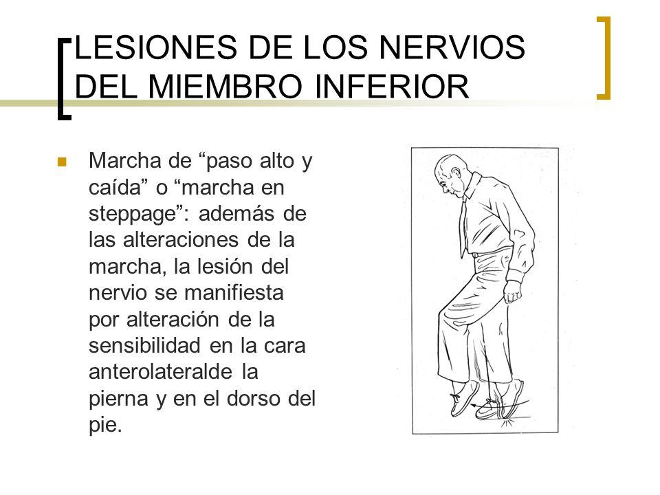 LESIONES DE LOS NERVIOS DEL MIEMBRO INFERIOR Marcha de paso alto y caída o marcha en steppage: además de las alteraciones de la marcha, la lesión del