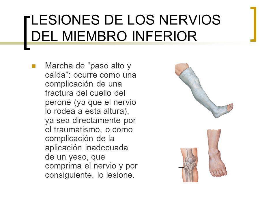 LESIONES DE LOS NERVIOS DEL MIEMBRO INFERIOR Marcha de paso alto y caída: ocurre como una complicación de una fractura del cuello del peroné (ya que e